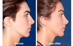 Facial Feminization Surgery (FFS) : Adam's Apple Reduction or Removal