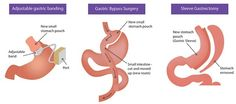 Are you looking for the best bariatric surgery for obesity weight loss In…