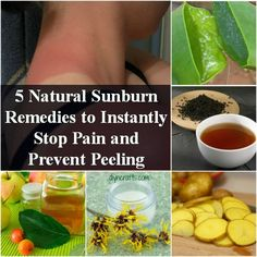 5 Natural Sunburn Remedies to Instantly Stop Pain and Prevent Peeling –...
