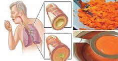 La carota può essere usata come potente rimedio naturale per la tosse sia secca che grassa. Ecco le ricette per fare lo sciroppo di carota per la tosse