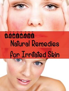 Natural Remedies for Irritated Skin  #skincare #healthyskin http://www.atalskinsolutions.com/ #naturalskincare  #skincareproducts #Australianskincare #AqiskinCare #australianmade