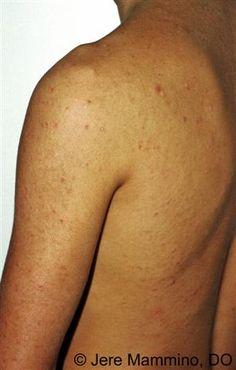 Pityrosporum Folliculitis - American Osteopathic College of Dermatology (AOCD)