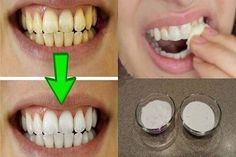 Remedies For Teeth Whitening Yellow teeth are very embarrassing, and therefore, don't want to smile and laugh.Luckily, you can have white teeth without spending your money on products that are filled with chemicals and don't g… Teeth Whitening Remedies, Natural Teeth Whitening, Whitening Kit, Coconut Oil For Teeth, Benefits Of Coconut Oil, Teeth Care, Peeling, White Teeth, Teeth Cleaning