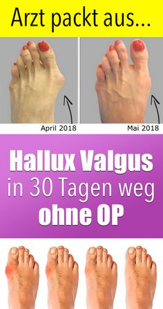"▷ Hallux Valgus - FAST relieve pain with . , Hallux Valgus - The Symptoms, Causes and Treatment. Doctor unpacks: ""Beautiful feet in 30 days with this new method"". Health And Wellness, Health Tips, Health Fitness, Fitness Workouts, Definition Of Health, Types Of Diabetes, Diabetes Facts, Cure Diabetes, Salud Natural"