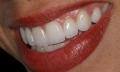 14 Best Teeth Images On Pinterest Perfect Teeth