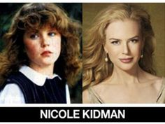 Hottest Actresses and Celebrities - View hot celebrity pictures and videos from around the web. Pictures submitted daily - see who is trending and showing it all off! Celebrities Before And After, Celebrities Then And Now, Famous Celebrities, Celebs, Celebrity Yearbook Photos, Celebrity Pictures, Famous Child Actors, Stars Then And Now, Nicole Kidman
