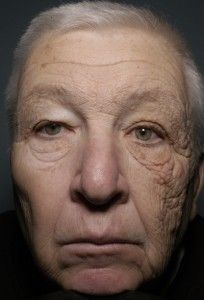 Effects of sun damage on only one side of the face!  He drove a truck for about 30 years without sunscreen. WEAR SUNSCREEN!