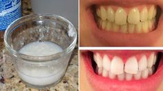 CORRELE antes de que lo borren, pues esta receta está siendo perseguida por todos los dentistas, ya que no les conviene, puesto a que esta es capaz de blanquear tus dientes naturalmente en solo par de días.