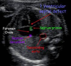 False Positive Ventricular Septal Defect
