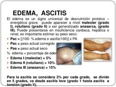 EDEMA, ASCITISEl edema es un signo universal de desnutrición proteico –energética grave, puede aparecer a nivel maleolar... Edema, Kidney Failure