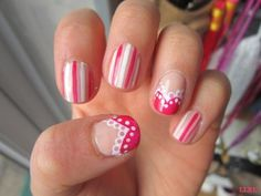 pink and white stripe nails with lace nail art design on accent nails
