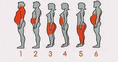 Los diferentes tipos de obesidad y cómo puedes identificar sus causas. La Ciencia aprueba y define seis tipos de obesidad, causada por diferentes factores.