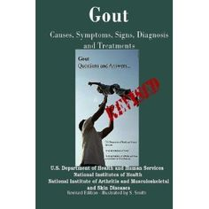 Gout: Causes, Symptoms, Signs, Diagnosis and Treatments - Revised Edition - Illustrated by S. Smith --- http://www.amazon.com/Gout-Symptoms-Diagnosis-Treatments-Illustrated/dp/1469967502/?tag=mlpoller-20