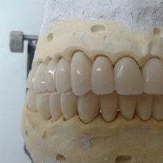 Prótese dentária - Meu trabalho (dentes provisórios)