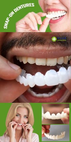 Perfect Teeth, Perfect Smile, Beauty Makeup Tips, Beauty Hacks, Beauty Skin, Beauty Secrets, Get Thin, Stained Teeth, Teeth Whitening