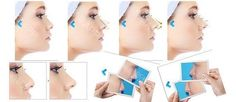 hyaluronic acid injectable ha filler