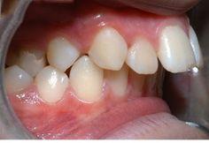 Chỉnh răng vẩu với mắc cài là gì?