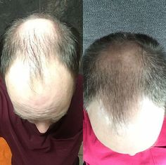 Monat helps all hair types! Even those with thinning hair!!! Check out these results!