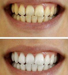 Dentes com brilho de pérola sem danificar o esmalte!  #clarearosdentes #dentes #dentesbrancos #beleza #carvãoativado