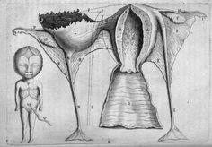 François Mauriceau (https://pinterest.com/pin/287386019949819160/). Représentation d'une grossesse extra-utérine. Traité des maladies des femmes grosses et de celles qui sont nouvellement accouchées. Paris, 1675.