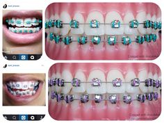 Use BraceMate to help you pick colours for your braces. Thanks for letting me use her photos. Types Of Braces, Braces Tips, Kids Braces, Dental Braces, Teeth Braces, Teeth Whitening Methods, Natural Teeth Whitening, Braces Retainer, Cute Braces Colors