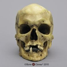 Bone Clones, Inc.Osteological Reproductions A female with masculine cranial features, check out the osteology report associated with the skull  https://boneclones.com/product/adult-human-female-masculinized-skull-BC-197/category/all-pathology-trauma/pathology-trauma