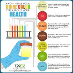 What Your Urine Color Tells About Health