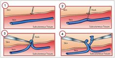 The most common way of treating the remaining varicose veins is through phlebectomy or micro-phlebectomy.