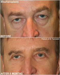 Eyelid lift surgery (blepharoplasty) – Before and After Pictures * – Dr Turowski – Plastic Surgery Chicago Eyelid Lift, Eyelid Surgery, Before And After Pictures, Plastic Surgery