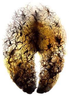 """""""Neuron bos"""", gebruik silhouetten van mensen is de donkere vlekken ... vallen.  ?"""