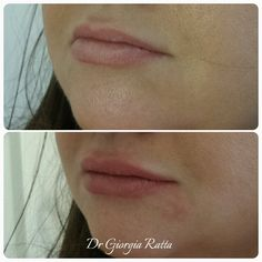 Lip Filler using Perfectha by Dr Girogia Ratta