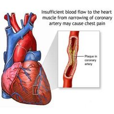 Effective Natural Cure For Clogged Arteries
