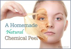 This homemade chemical peel recipe is all natural and will leave your skin feeling great! You'll love it and notice right away how much softer your skin feels.