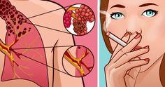 E-sigaret gezonder dan een gewone sigaret? Het kan deze gevaarlijke ziekte veroorzaken!