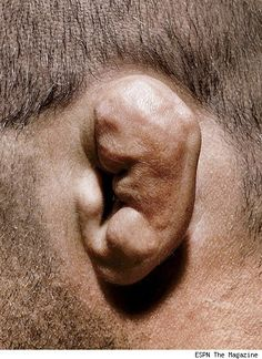 Wrestling cauliflower ear---my worst fear for Griffyn. #Wrestling