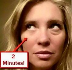 look to her right eye, amazing results with Instantly ageless.
