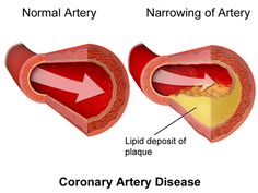Coronary Artery Disease -See how to lower cholesterol naturally at: http://vitamins.vitanetonline.com/