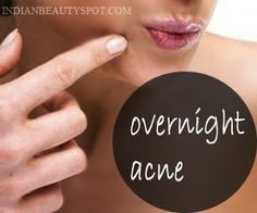 get rid of acne /pimples overnight  home remedy
