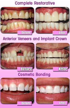 Beauty is power; a smile is its sword.  Makeover your smile today with complete restorative, veneers, crowns, & cosmetic bonding! Remember, you're never fully dressed without an amazing smile!