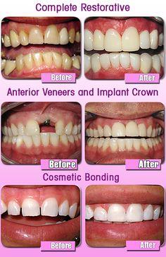 cosmetic dentistry, dental implants, etc Cosmetic Dental Surgery, Cosmetic Dentistry Cost, Dental Life, Medical Dental, Smile Dental, Dental Art, Smile Teeth, Teeth Health, Dental Health