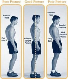 """Perfect Posture Series: How To Fix Lower Body Imbalances; Lumbo-Pelvic-Hip Complex or """"Sway-Back"""" (Bad Posture Fix Exercises) Posture Fix, Posture Exercises, Bad Posture, How To Get Tall, How To Grow Taller, Pilates, Sway Back, Hip Problems, Perfect Posture"""