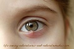 Natural Holistic Remedies How to Get Rid of a Stye: 17 Home Remedies and Treatments - A stye occurs when a particular strain of bacteria affects the oil gland of the eyelid. Read this article to know 17 home remedies and treatments to get rid of styes. Eye Stye Remedies, Holistic Remedies, Herbal Remedies, Home Remedies, Natural Remedies, Remedy For Stye Eye, Health Remedies, Immune System, Health And Wellness