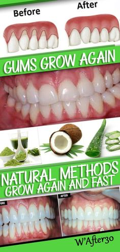 Natural Teeth Whitening Make Receding Gums Grow Again And Fast With These Natural Methods – Touch Of The Nature - Gum Health, Teeth Health, Dental Health, Dental Care, Oral Health, Healthy Teeth, Women's Health, Health Benefits, Health Fitness