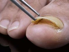 The best home remedies for toenail fungus - Healthy Nails Fingernail Fungus, Toenail Fungus Remedies, Fungal Nail, Fungus Toenails, Get Rid Of Corns, Toenail Removal, Toe Fungus