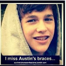 Austin Mahone is so cute with braces!리얼카지노리얼카지노리얼카지노리얼카지노리얼카지노