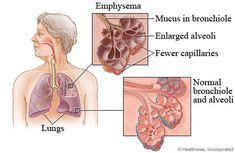 Emphysema diagnosis is based upon its symptoms of shortness of breath, chronic cough with sputum, history of exposure to risk factors and frequent infections in patients over the age of 35 to 40 years. Confirmation of diagnosis is then done on the basis of results obtained by spirometry. FEV1/ FVC ratio of less than 0.7 after bronchodilator use confirms emphysema. Complete blood count and X-ray chest are also important diagnostic tools for emphysema.