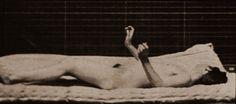 (1887) Man Convulsing