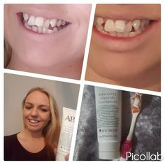 AP24 whitening toothpaste  Look at the results  Message me for details ....