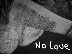It's me no love not as bad as on my thighs but there's my arm