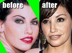 Gina Gershon Before After Nose Job?